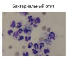 бактериальный отит